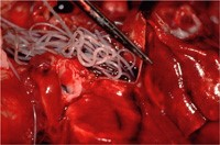 Heartworms in the heart of a dog.  Image source: American Heartworn Society